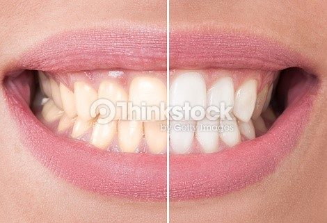 Whiter teeth