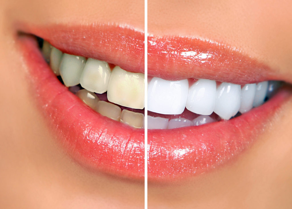 teeth whitening in Rockingham